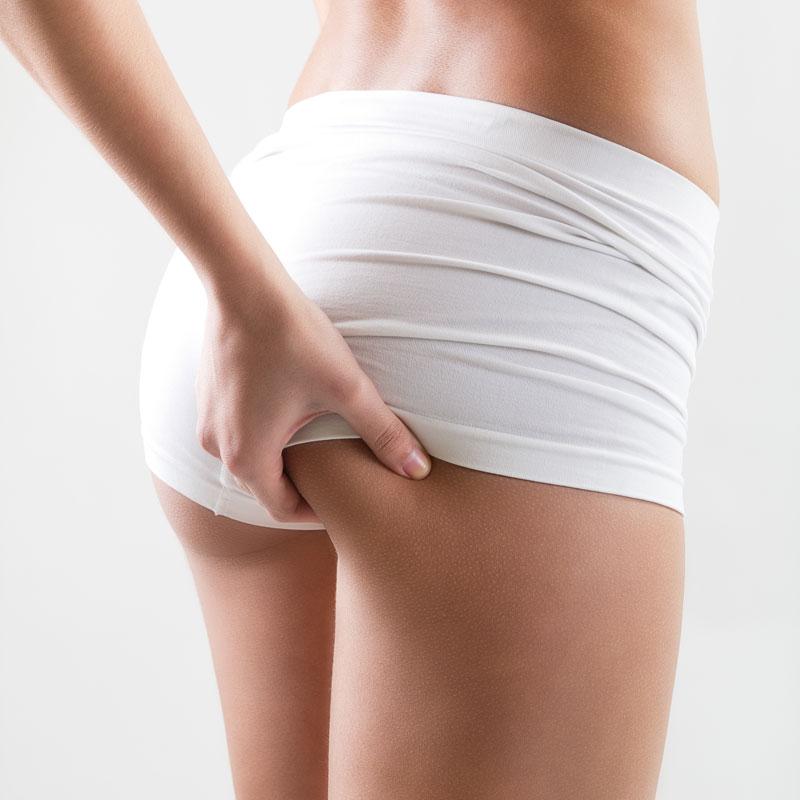 Prevents Cellulite